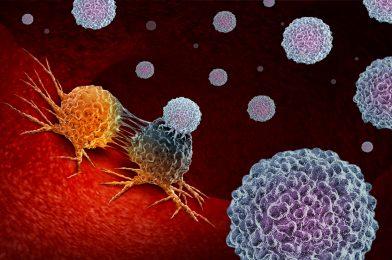 Cancer Metastasis: The Real Killer